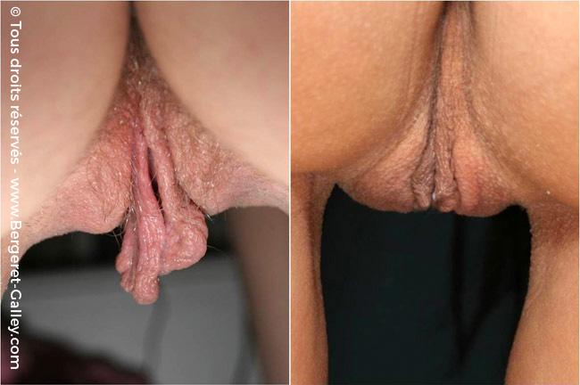 Nymphoplastie