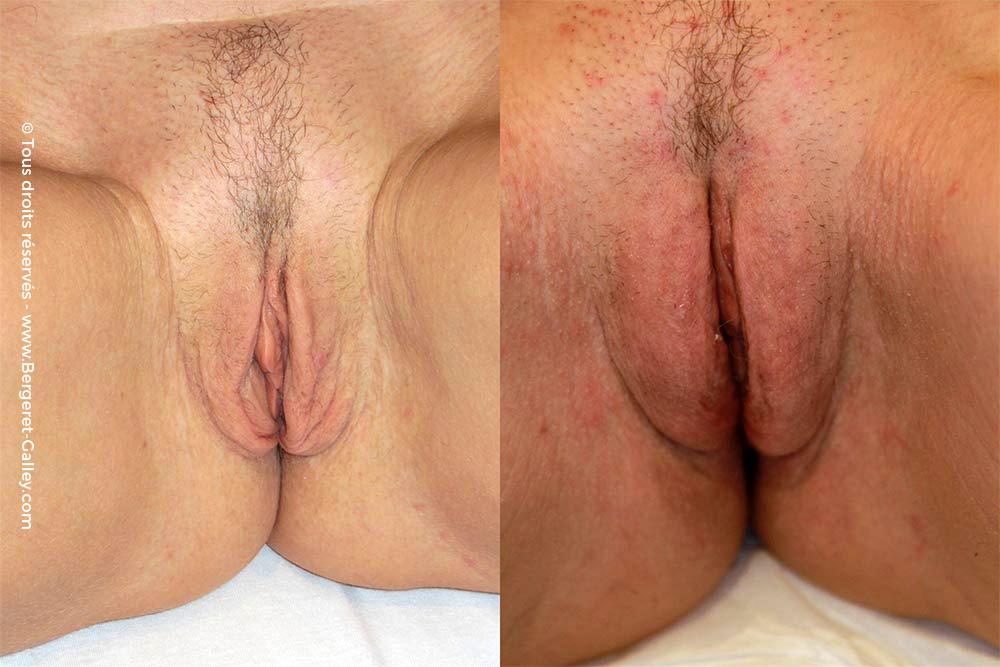 Genital Rejuvenation