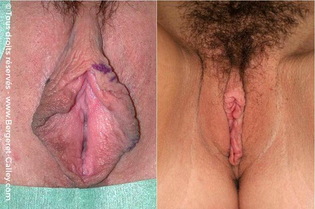Woman intimate surgery