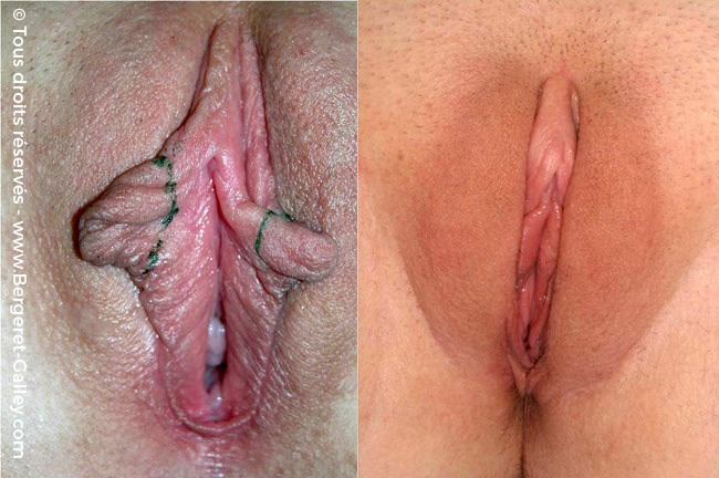 Female genital aesthetic surgery