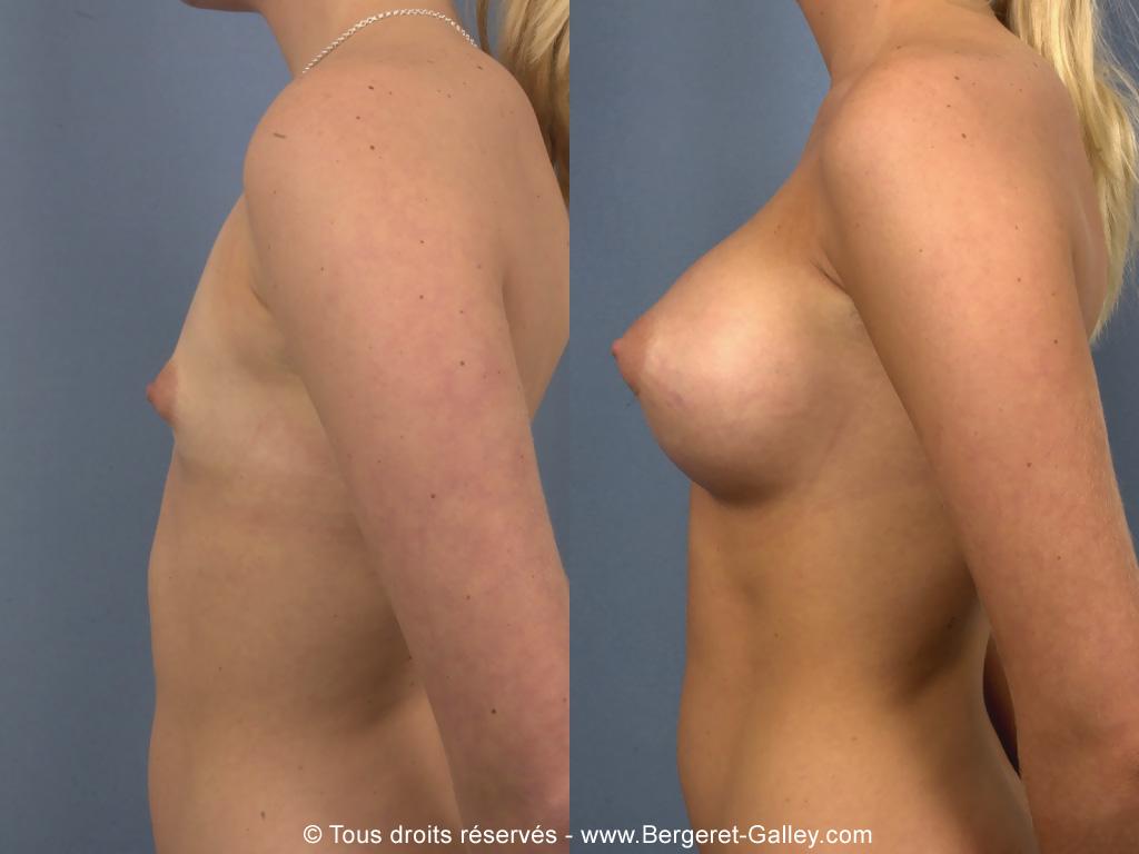Photo de profil prothèses mammaires 320ml