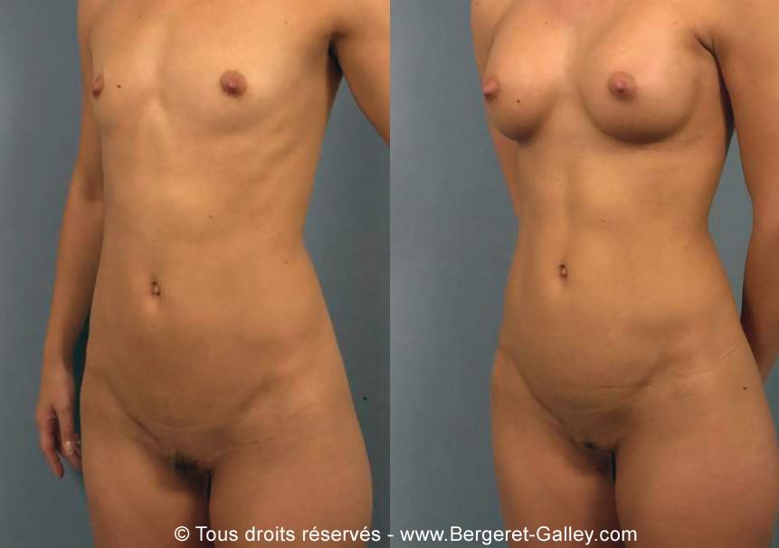 Photo avant/après augmentation mammaire avec des prothèses 280ml