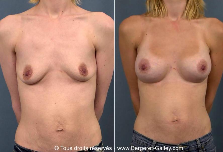 Photo avant/après augmentation mammaire avec des prothèses 250ml