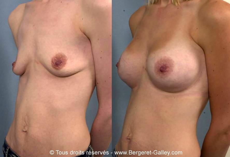Photo avant/après augmentation mammaire avec des prothèses 260ml