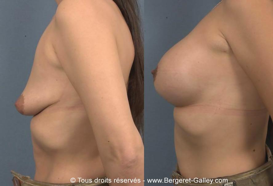 Photo avant/après augmentation mammaire avec des prothèses 285ml