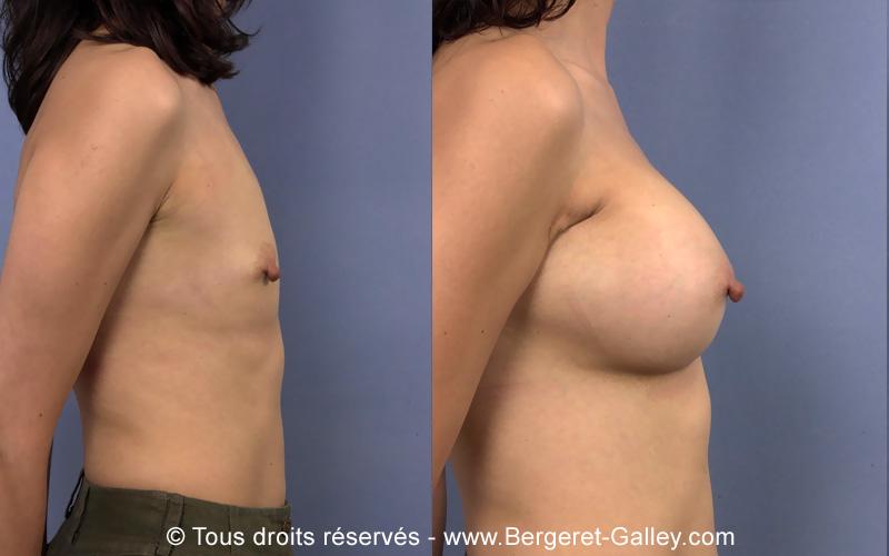 Avant et apres Augmentation mammaire