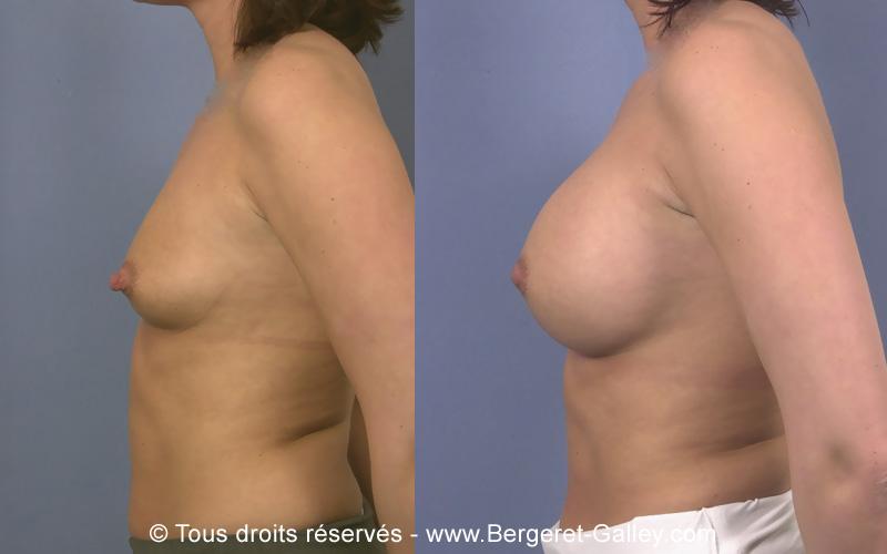 Résultat augmentation mammaire avec des prothèses 350ml