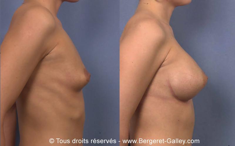 Résultat augmentation mammaire avec des prothèses 350ml de côté