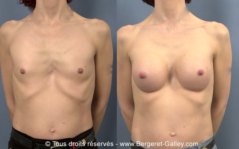 Photo avant/après augmentation mammaire avec des prothèses suite une malformation congénitale