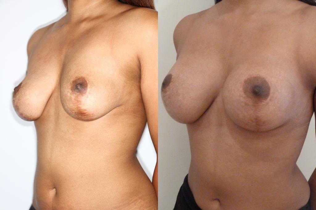 Lifting des seins + prothèses