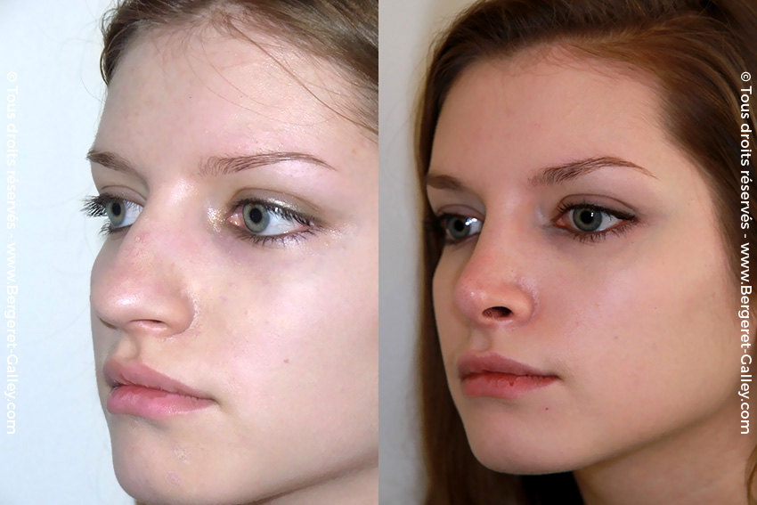 Aesthetic Rhinoplasty