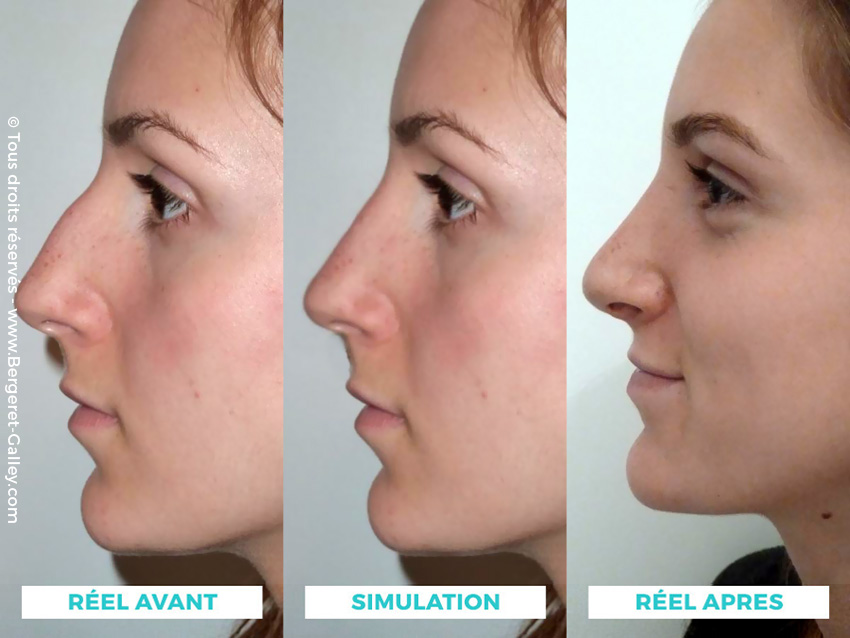 Before/After Simulation and after surgery of  Rhinoplasty