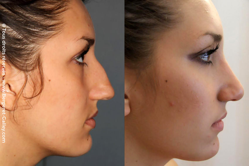 Before/After aesthetic  Rhinoplasty
