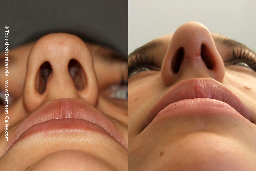 Before/After  Tip Rhinoplasty