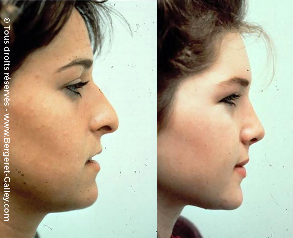 Before/After Rhinoplasty