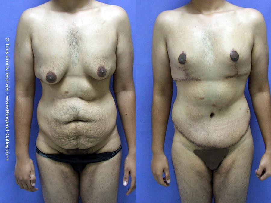 Gynecomastie