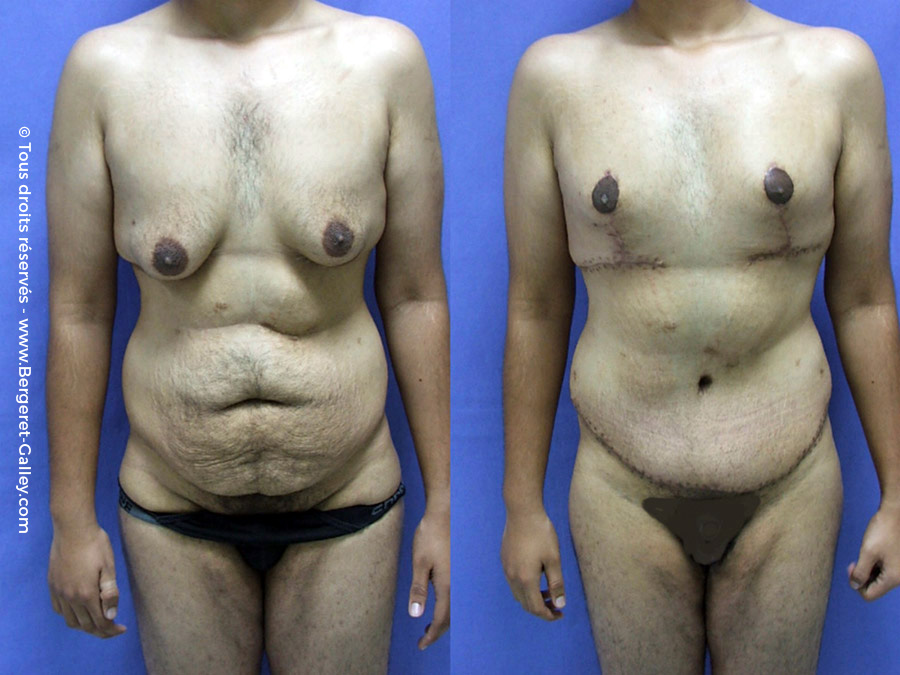 Lipoaspiration de Gynécomastie