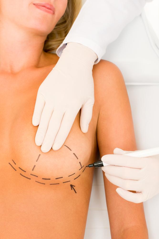 laugmentation-mammaire.jpg