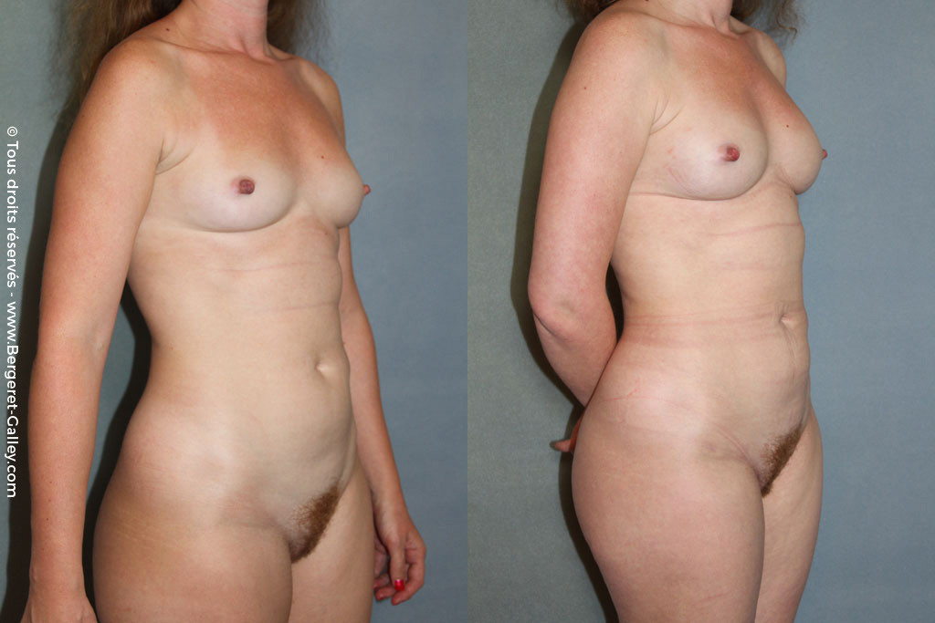 Lipofilling of the breast