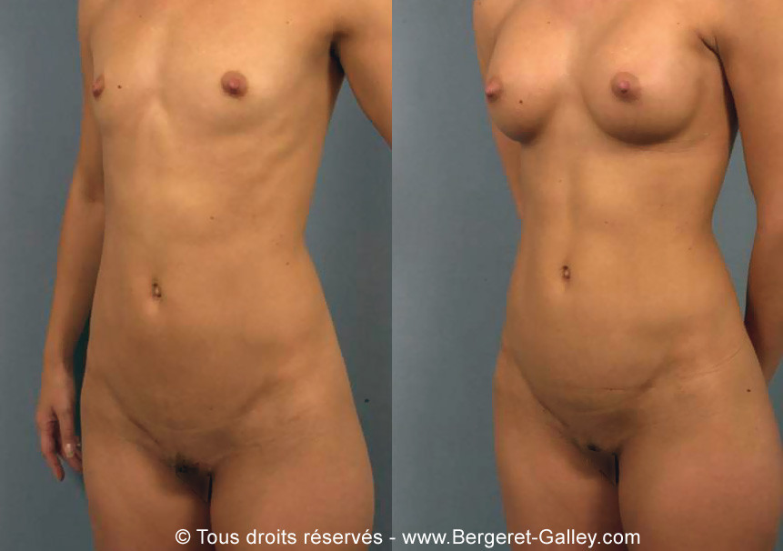 Follow-up after surgery with a breast enlargement with implants