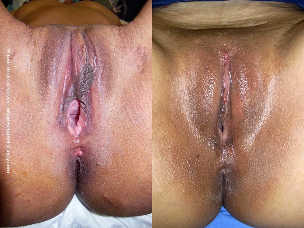 Vulvo vaginal rejuvenation