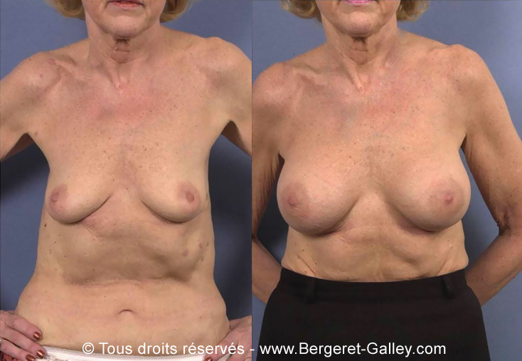 Breast augmentation with implants on an older lady