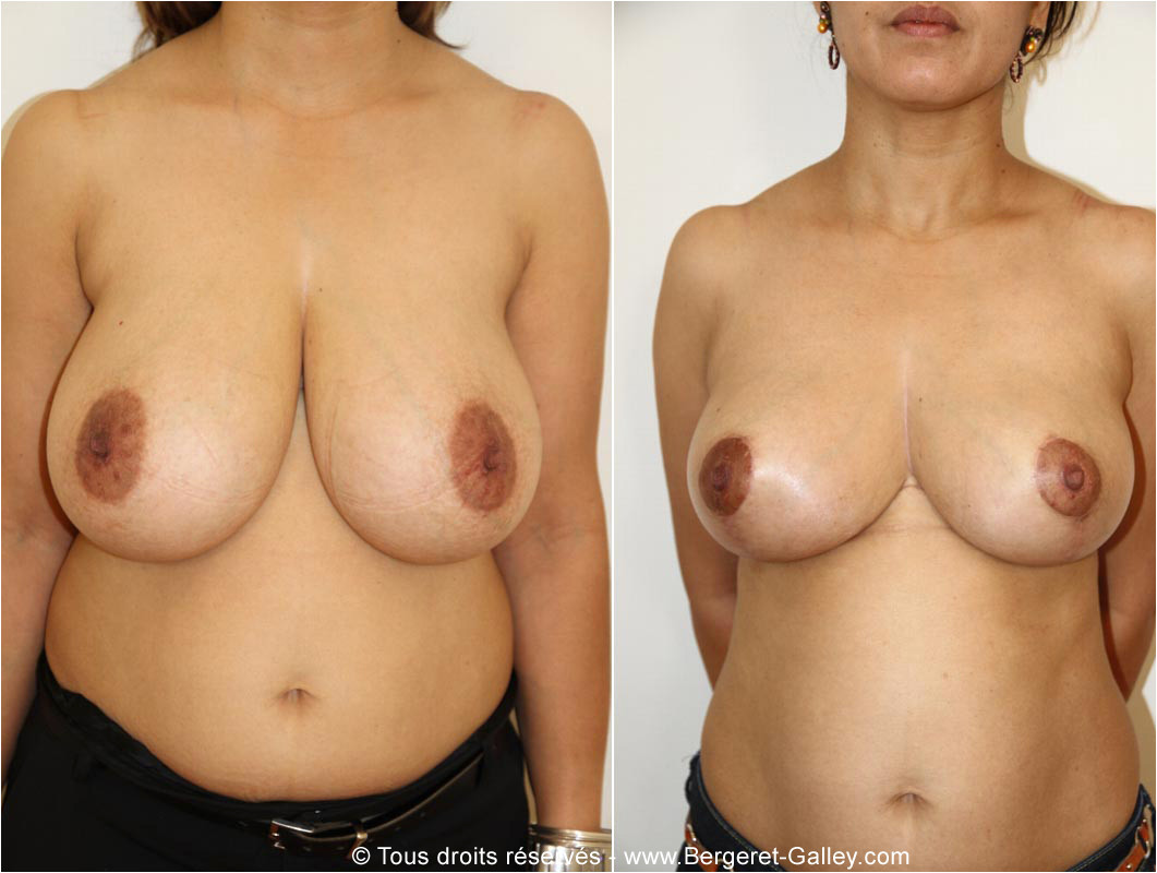 Breast surgery for smaller breasts , called Breast reduction