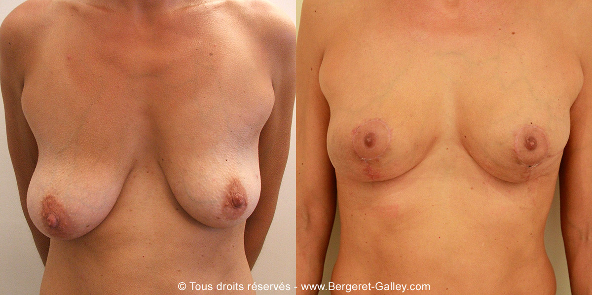 Before/After breast Reconstruction