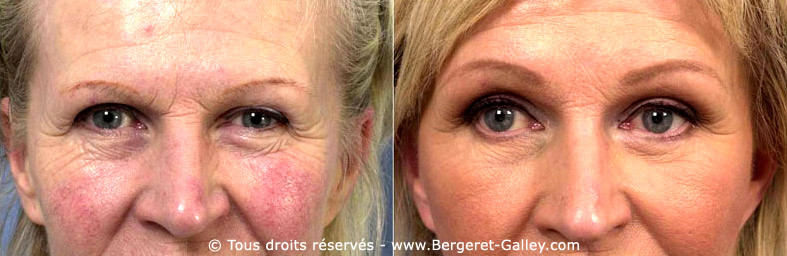 This woman had a total facial rejuvenation including eyelid aesthetic surgery