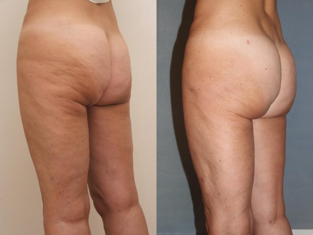 Avant/après un lifting des fesses et liposculpture