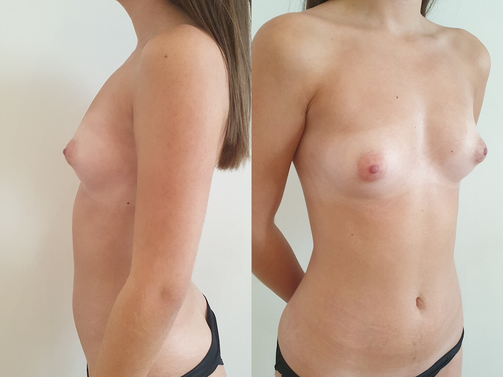Tuberous breasts before surgery