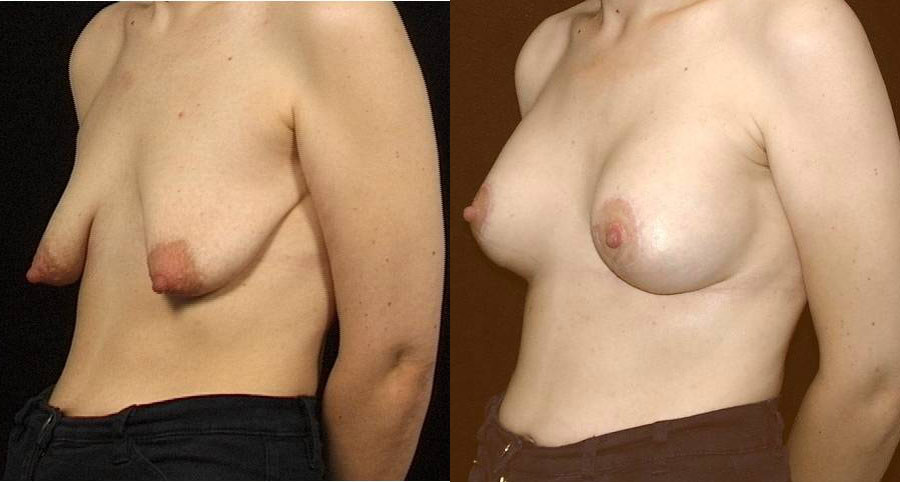 Before and after mastopexy with breast augmentation
