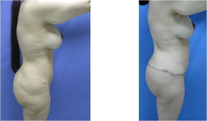 Lifting buttocks