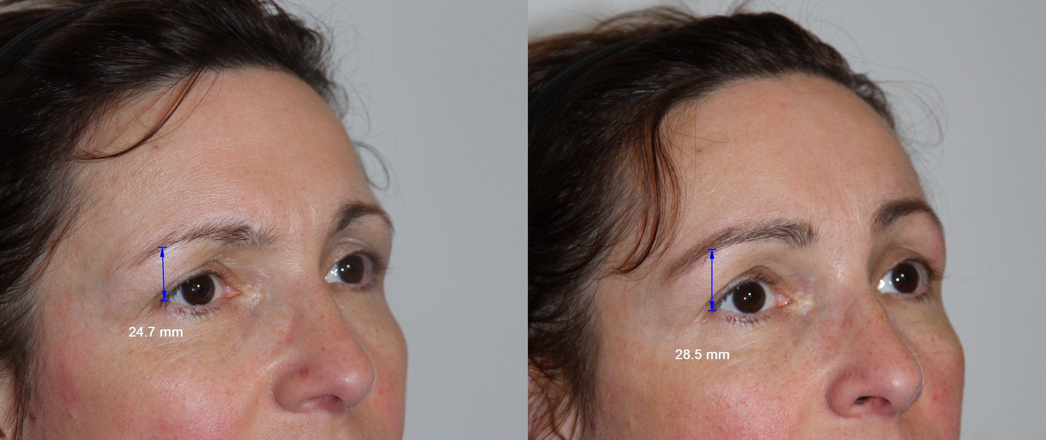 Photo Showing the result after an endoscopic eyebrow lift and facial lipofilling
