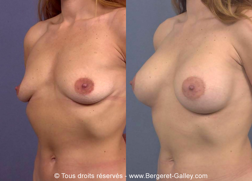 Same patient before and after a breast augmentation, 350 mL