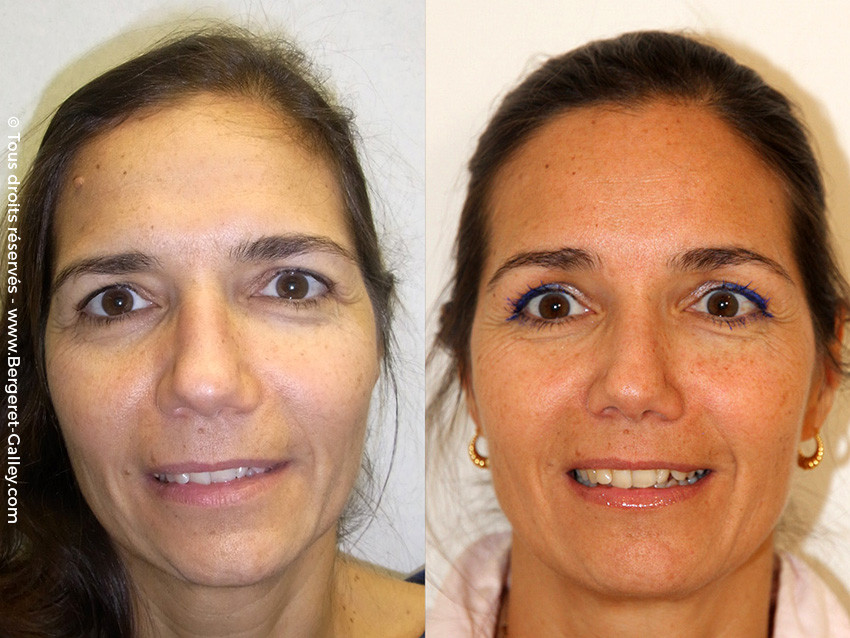 Photo result before and after an endoscopic forehead lifting