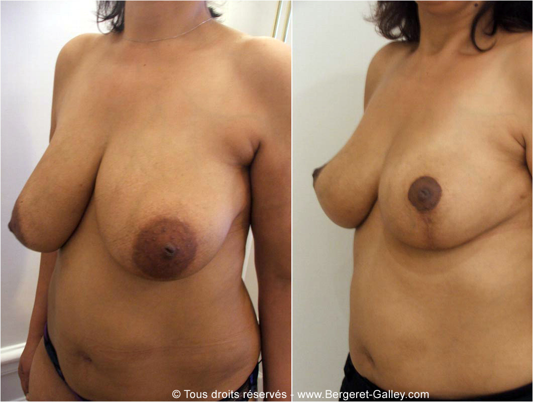 Large breasts with ptosis