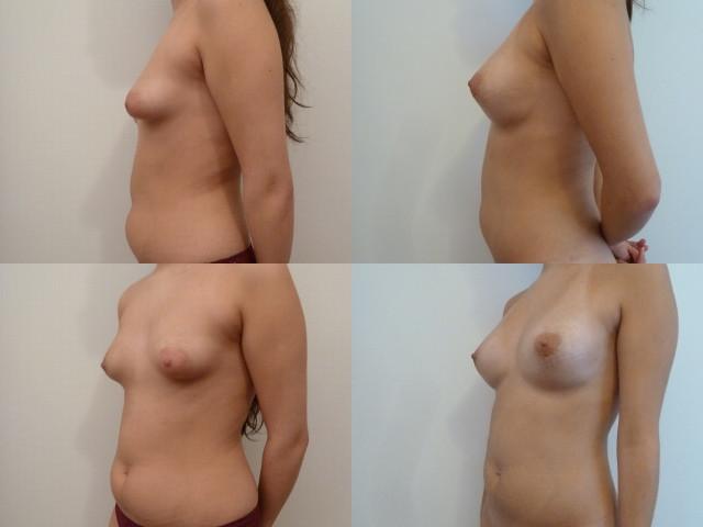 seins tubereux avant/après opération avec