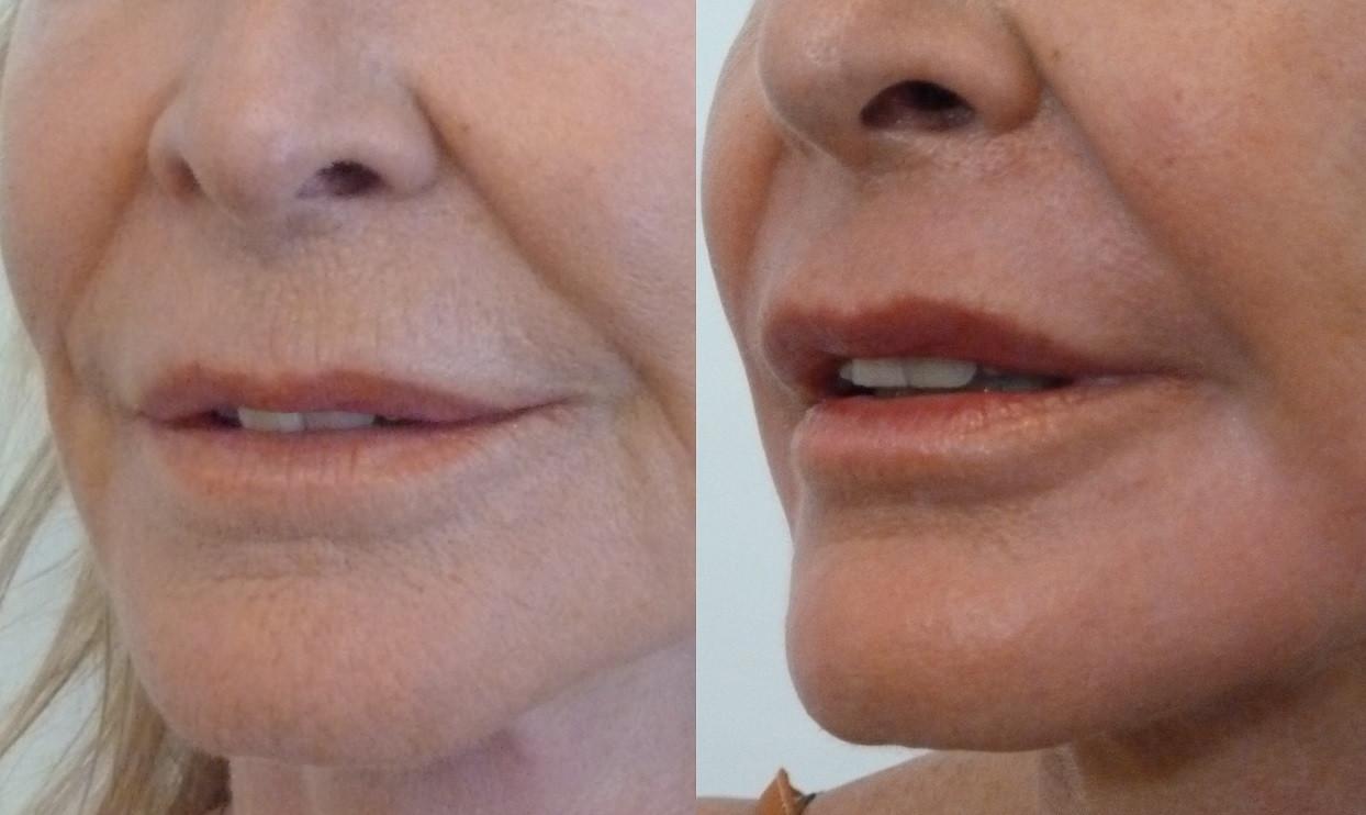 Peeling chimique autour de la bouche