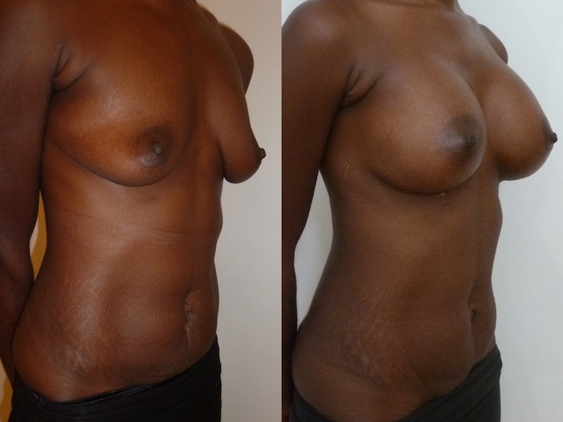 Photo before-and-after a breast augmentation with implants