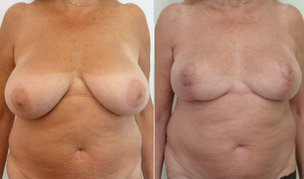 Breast reduction with URGOTOUCH