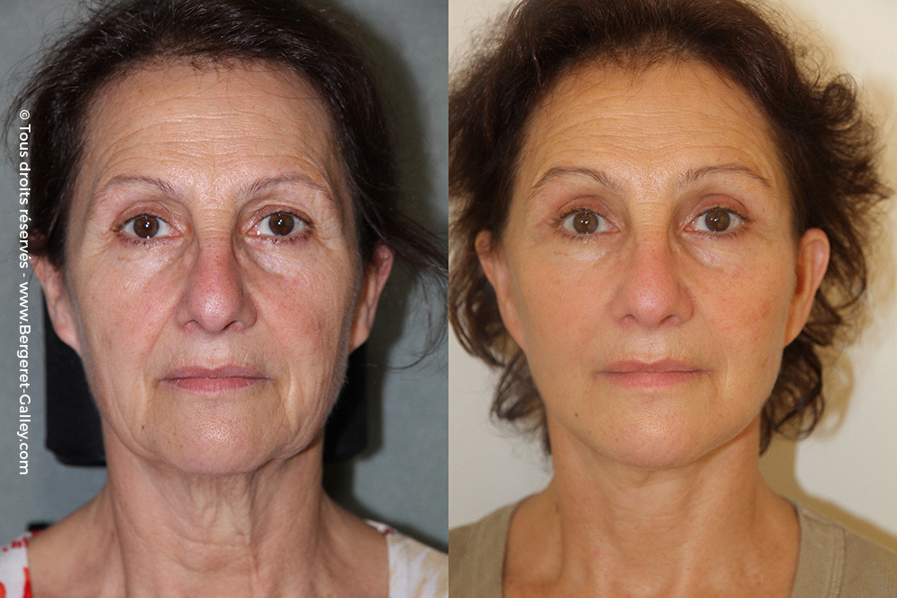 Result after a total facial rejuvenation including a chemical peel and fat transfer to the face