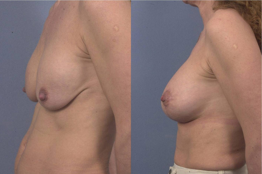 Mastopexy and changing of the implants