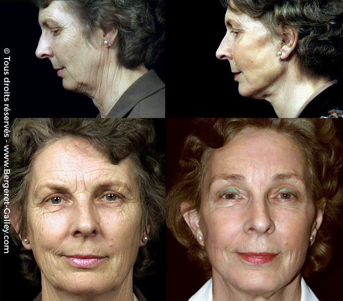 Result before/after Eye Brow lift, as part of a total facial aesthetic surgery