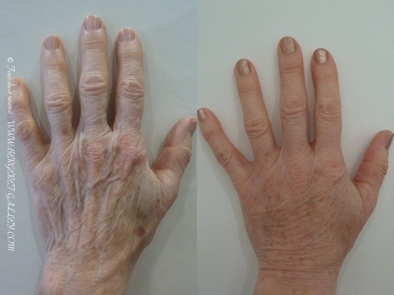 Résult of lipofilling hands