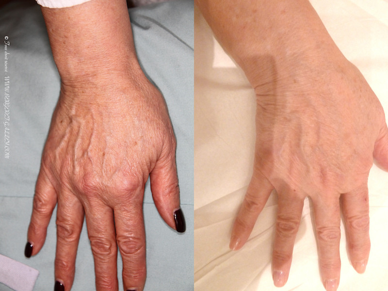 Titre        Before and after lipofilling of the hands