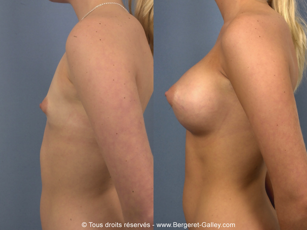 Photo from the side on the same patient showing an excellent result.
