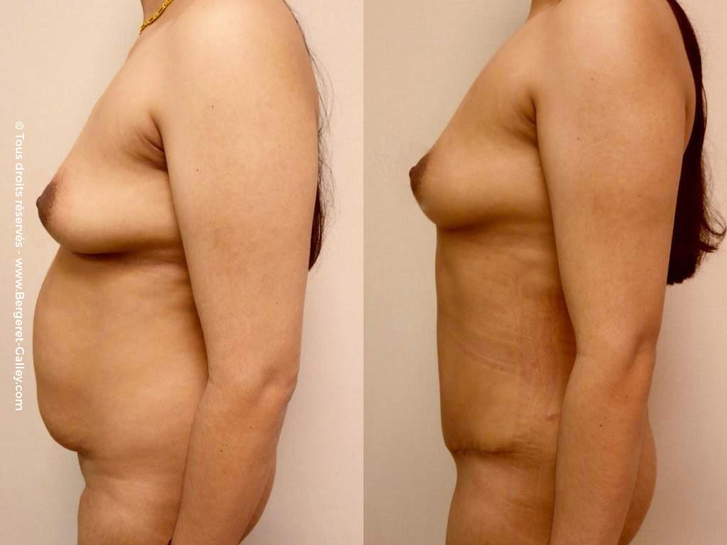 Abdominoplastie de profil
