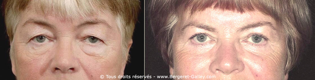 A beautiful result after an upper and lower blepharoplasty on a woman