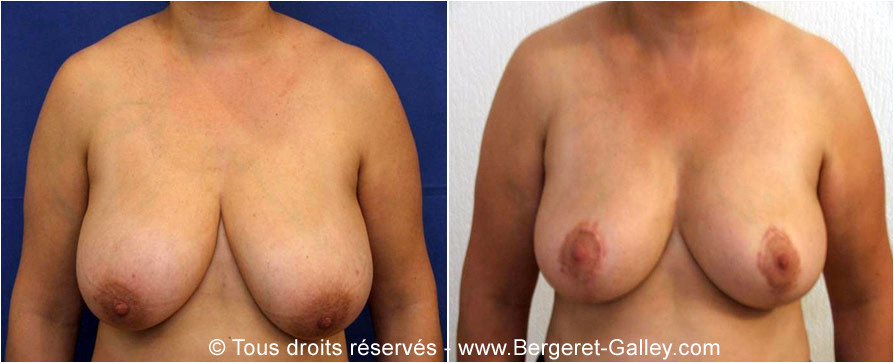 Mammary reduction